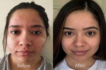 proactiv before and after picture