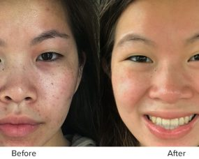 proof proactiv works