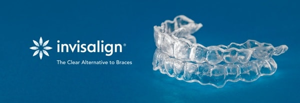 quick overview of invisalign